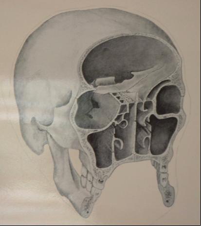 Sinus maxillaire sous les cavités orbitaires