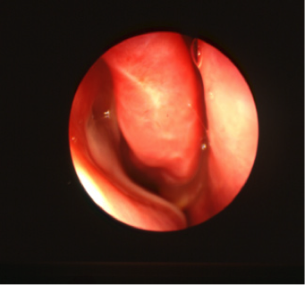 Pus issu du sinus maxillaire droit