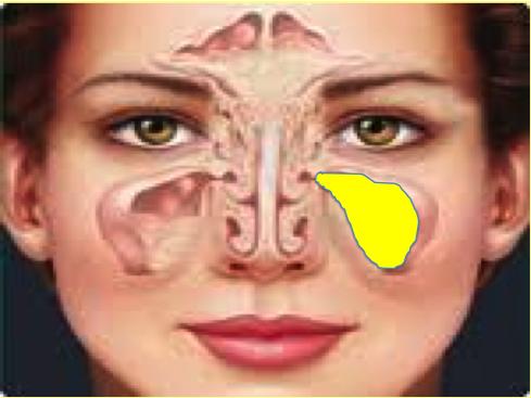 Sinusite maxillaire bloquée